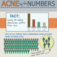 Acne By The Numbers - interesting acne statistics and treatment advice
