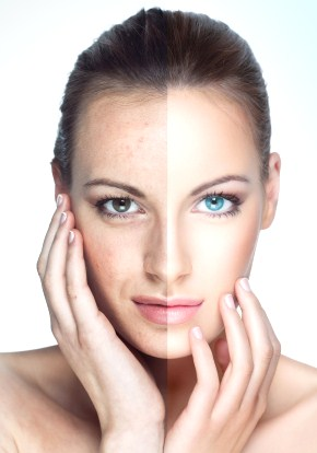 acne and aging