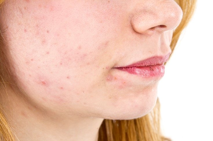 How To Clear Face Rash Naturally