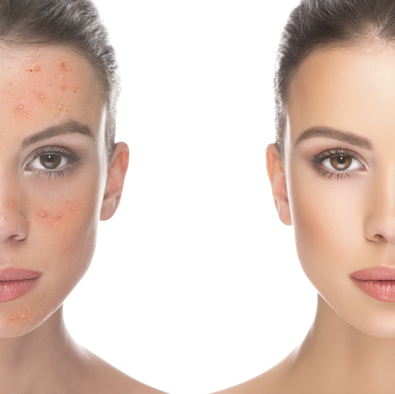 acne before and after