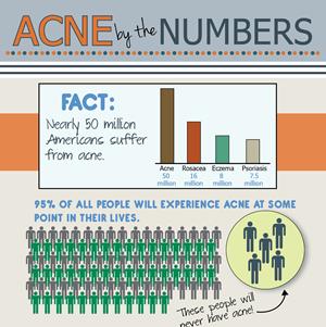 Acne Statistics Infographic