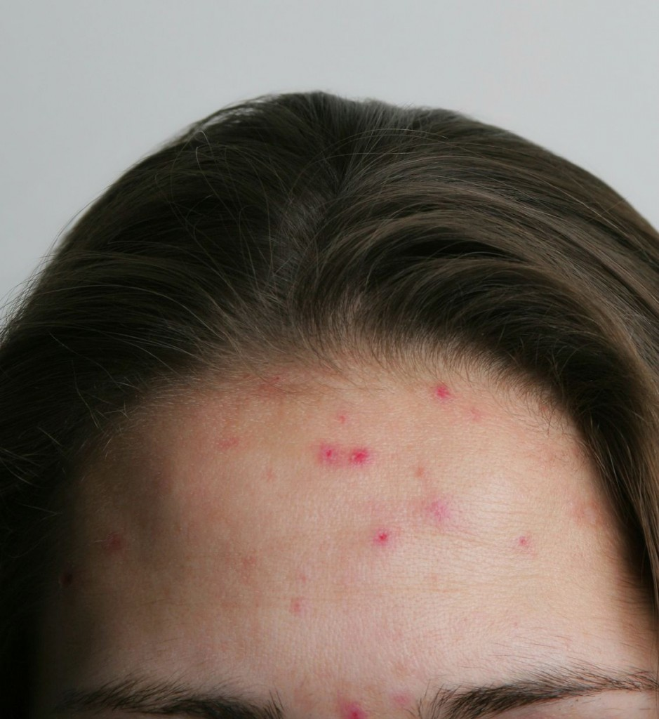 inflamed acne