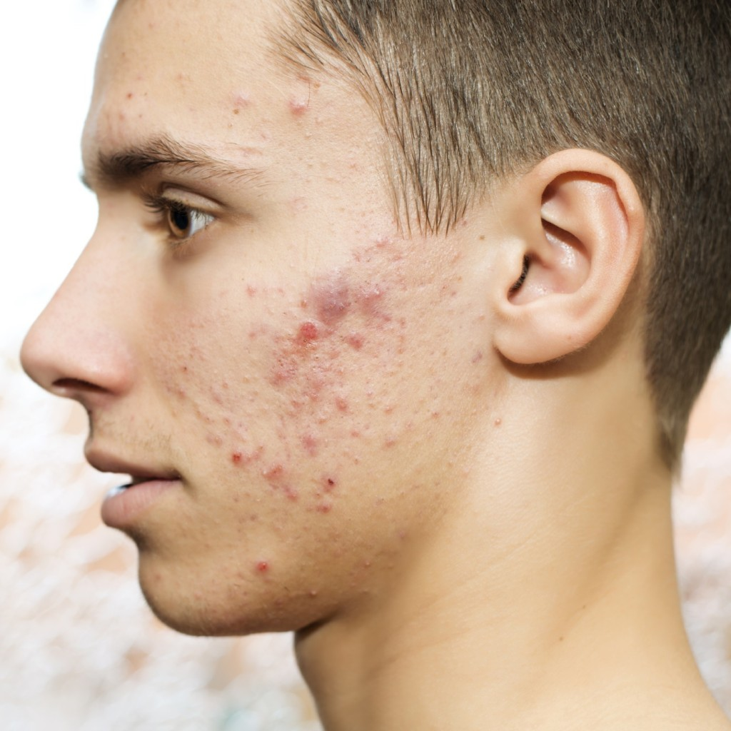 we know that cystic acne can be really painful both physically and