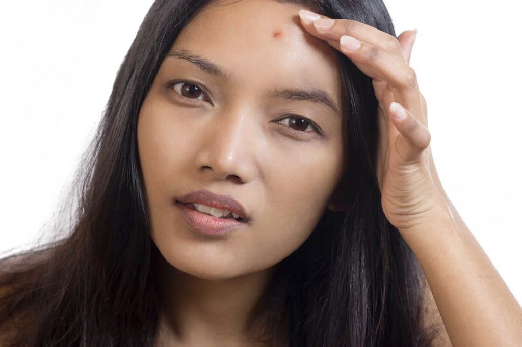 Woman finding an acne on her forehead