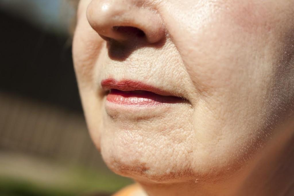 droopy skin