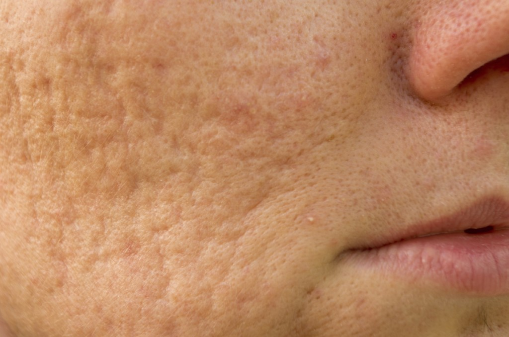 let s talk pockmarks mario badescu skin care blog